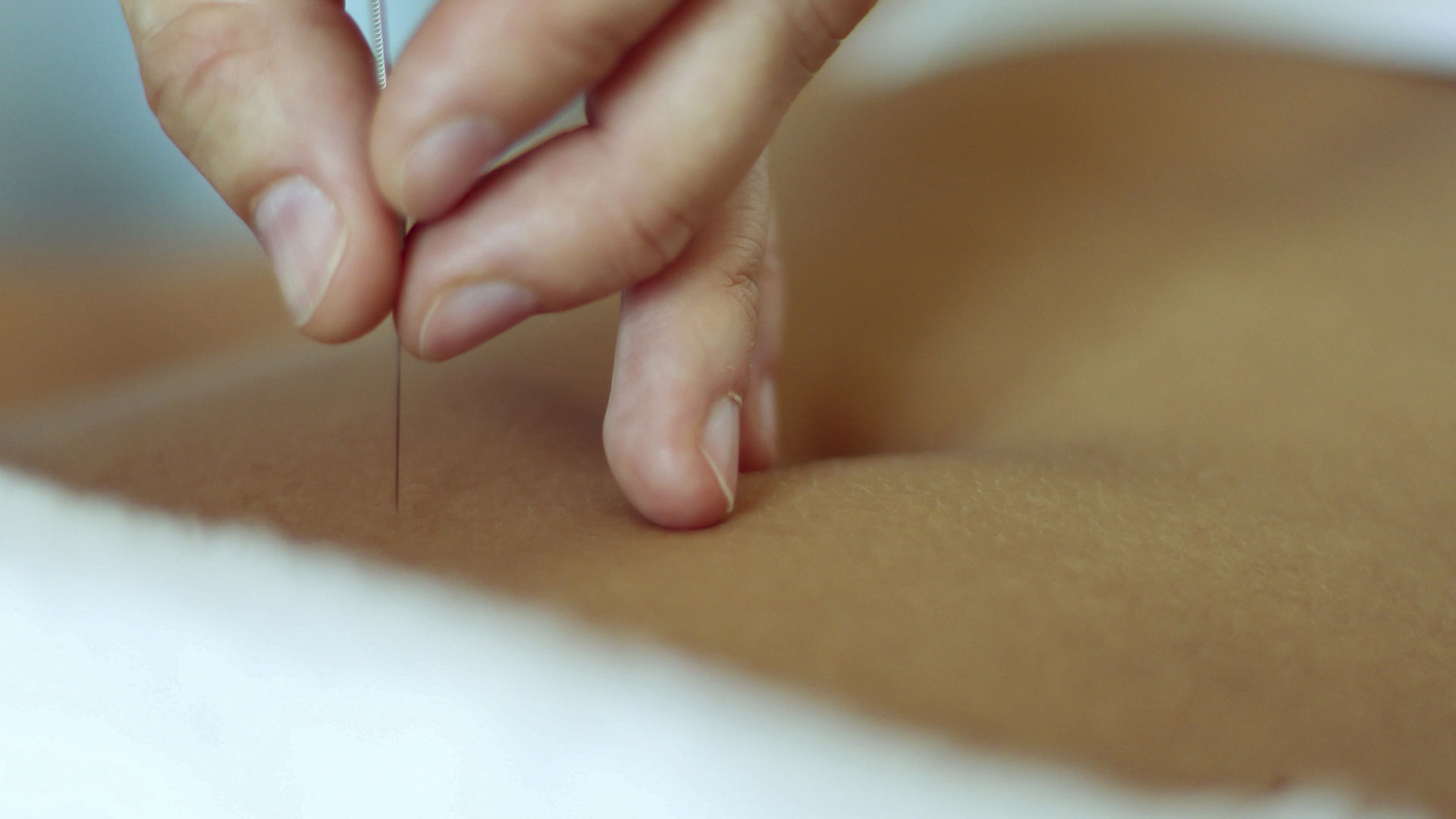 Acupuncture services from Balanced Body Acupuncture & Chriropractic